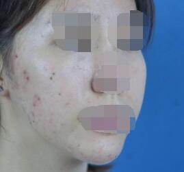 彩光嫩肤让我实现了光滑无痘疤的肌肤