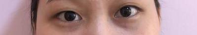 單眼皮伴我成長惹煩惱,雙眼皮手術讓我美麗又漂亮