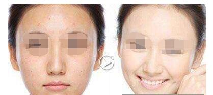 彩光嫩肤祛斑恢复过程分享