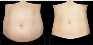 优立塑腹壁吸脂