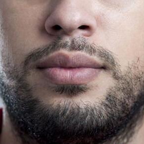 FUT植发技术种植胡须