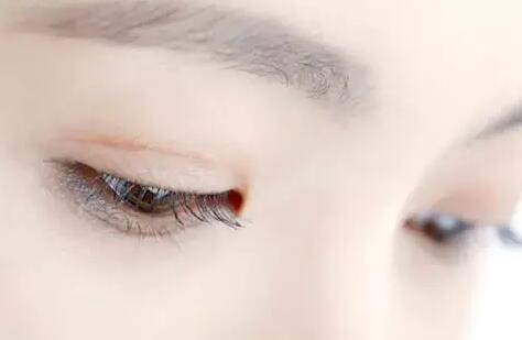 三点式双眼皮
