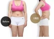 吸脂瘦身要注意的四大误区
