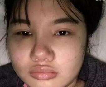 胖脸女大学生花百万削骨整形成杨幂 网友:竟比杨幂还美