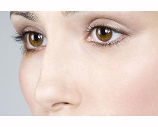埋线双眼皮恢复期要多久?