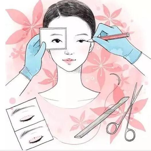 双眼皮术后恢复你了解多少?