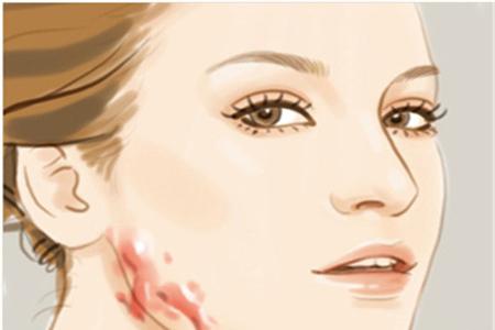 什么方法可以去疤痕呢