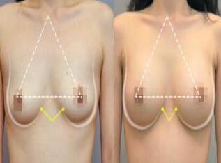 隆胸攻略:做假体隆胸怎么样?好吗?